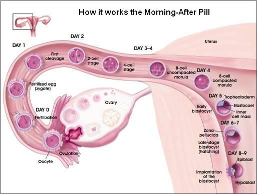 The Morning After Pill Process - How It Works